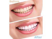 £59 Laser Teeth Whitening - Models needed- Angel London- London Beauty Institute- Cheap Deal