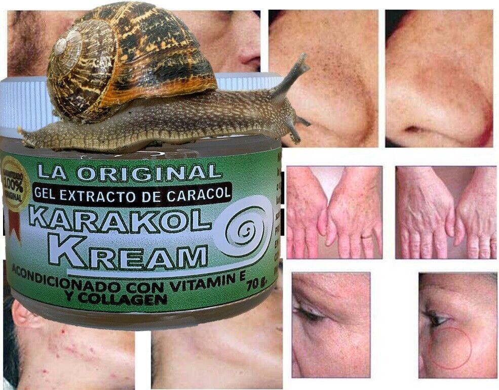 Karakol kream,dermaccina manchas,estrias,snail cream,crema de caracol,acne 2