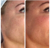 Dermaplaning Certification Course