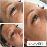 Fibroblast Skin Tightening Certification Course
