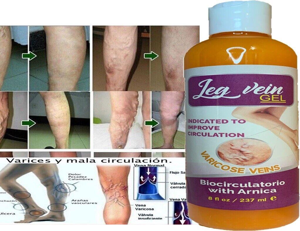NEW Advanced Vein Care Varicose Vein Cream 8 oz 237 ml Spider Veins Relief gel 2