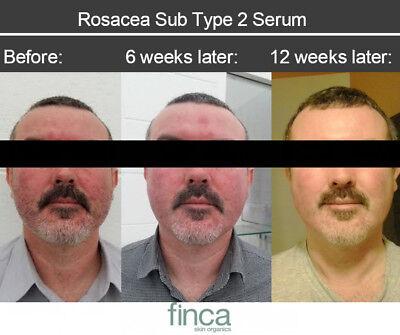 rosacea type 2 serum