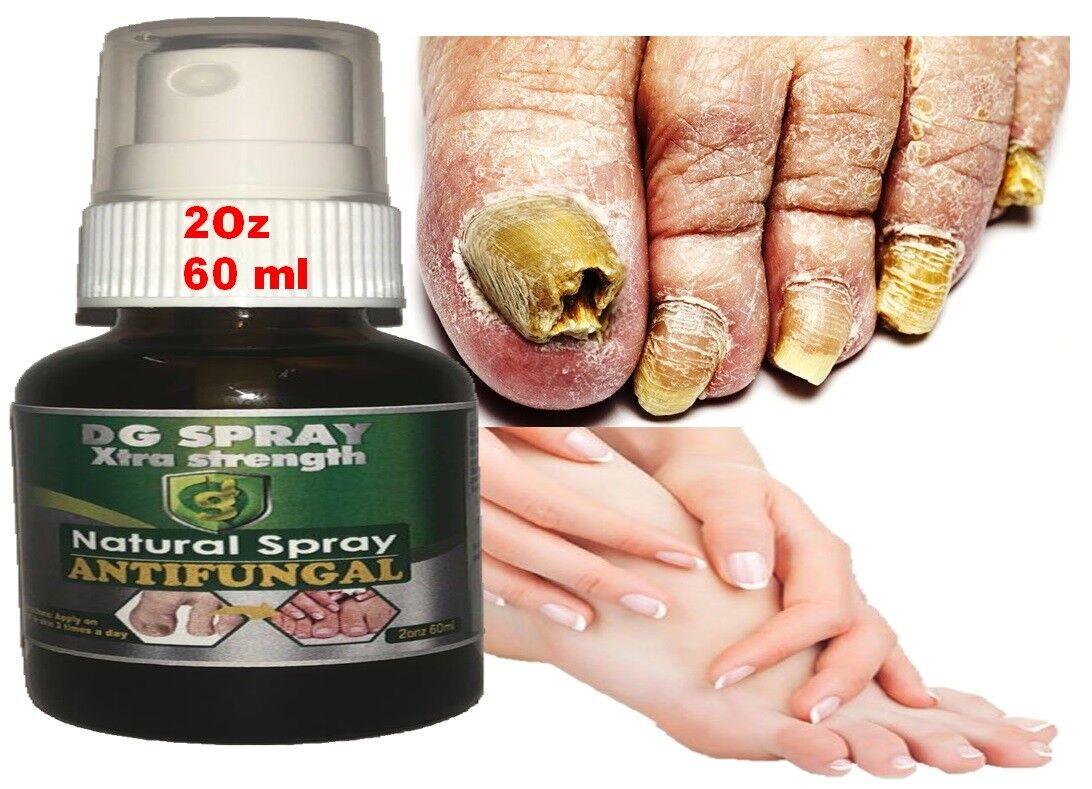 ANTI FUNGAL TREATMENT EXTRA STRENGTH TOENAIL FUNGUS FUNGI XS NAIL ATHLETE'S FOOT 1