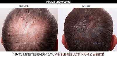POWER GROW HAIR LOSS CURE  LASER TREATMENT REGROW COMB TREATMENT KIT FOR HAIR
