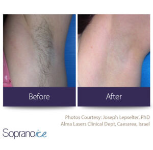 99$ laser hair removal with soprano xli-ice for package of 6