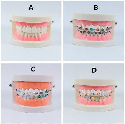 Dental Study Model Typodont Demonstration Orthodontic Bracket Tube Arch Wire