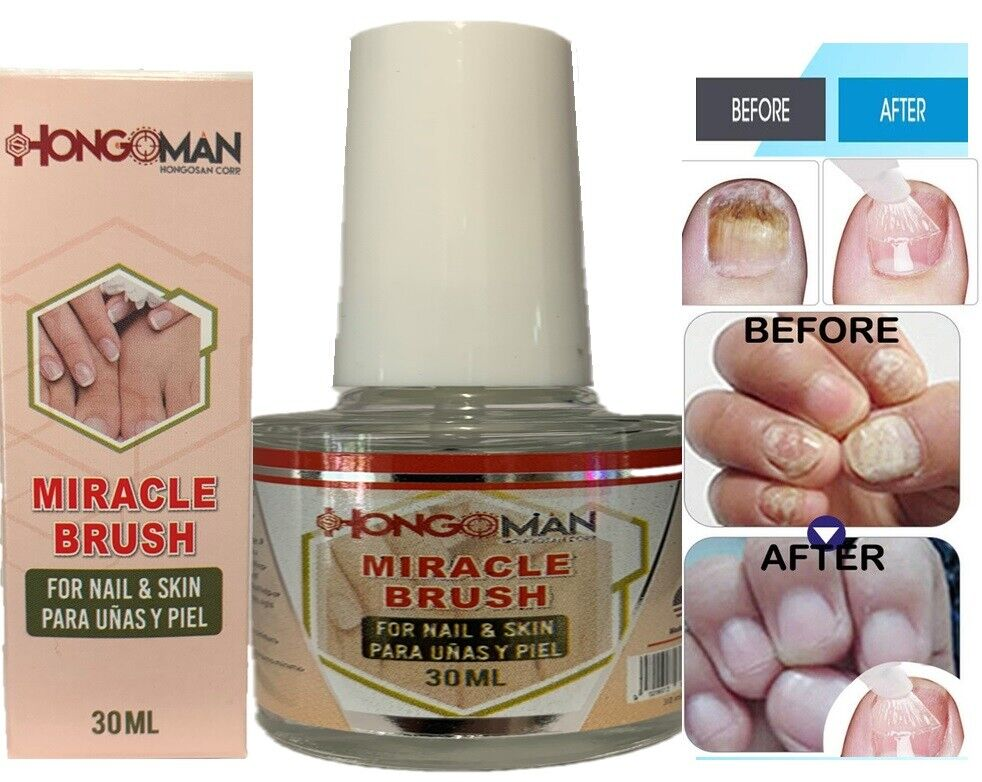 Nail Fungus Original Hongosan Miracle Brush FREE SHIPPING Toe & Fingers Maximum