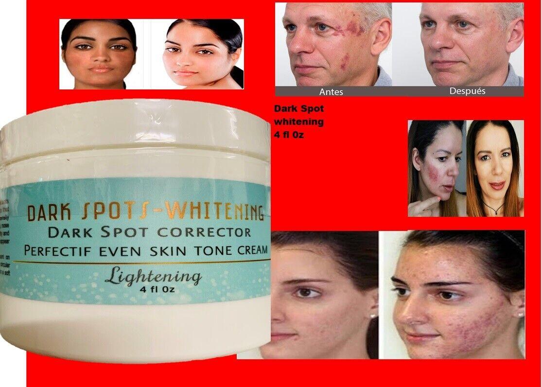 Mejor Crema Blanqueadora Aclaradora Para Manchas En La Cara Y Partes Intimas 4oz 6