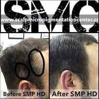 Scalp Hair Tattoo treatment Balding Men and Women in Montreal