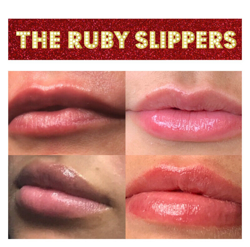 Hyaluron Pen noneedle Fillers Training Course The Ruby