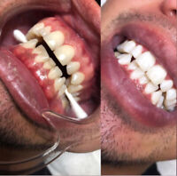 Mobile Teeth Whitening - $150.00 per person or $300 per couple
