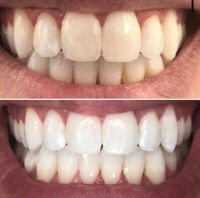 Professional Teeth Whitening  ONLINE Training !