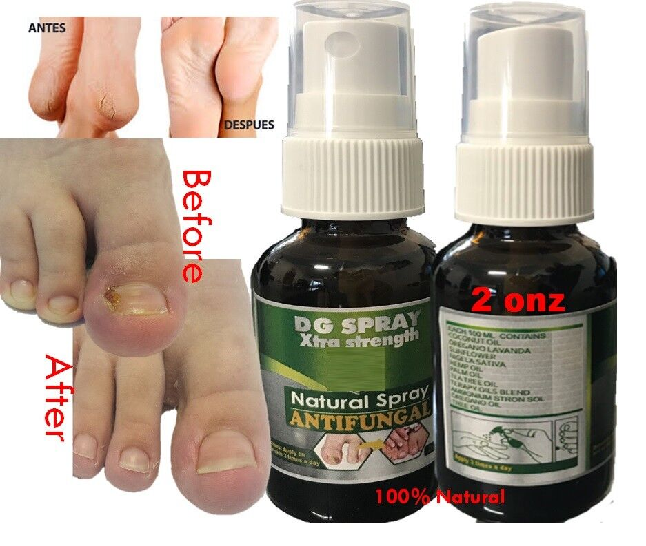 AntiFungal Nail Treatment Toe Nail Finger Fungus Infection fast Cure natural 4u