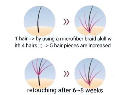 Hair increase