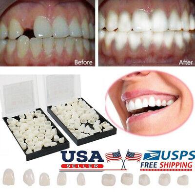 Dental Material Teeth Mixed Temporary Molar Posterior Veneers Teeth Dentist Tool