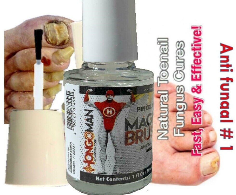 Anti-Fungal Nail Cuticle Treatment Solution For Toes Fingers Max 100% antifungal 1