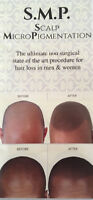 "STATE OF THE ART HAIR LOSS SOLUTION  ""SCALP MICROPIGMENTATION"""