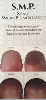 """STATE OF THE ART HAIR LOSS SOLUTION """"SCALP MICROPIGMENTATION """""""