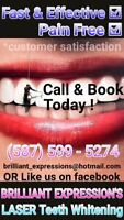 Brilliant Expressions Laser Teeth Whitening