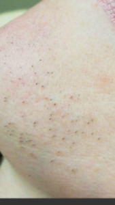 Full body hair laser removal head to toe only for $150 painless!