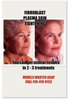 FIBROBLAST MODELS NEEDED ASAP!!!