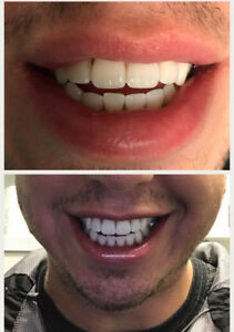 40% off In-Boutique Teeth Whitening Etobicoke