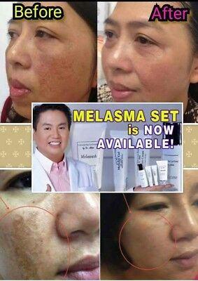 Dr. Alvin PSCF Melasma Set Treatment With Kojic Soap For Best
