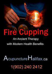 Fire Cupping and Traditional Chinese Medicine