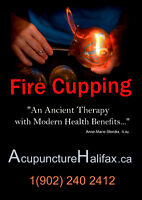 Chinese Fire Cupping for Back pain and more