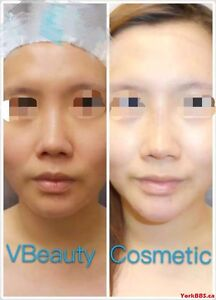 """"""" Botox """"lowest price $5.5/unit By Dr"""