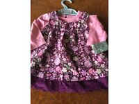 Baby Girls Dress & Top (new) 0-3 Months