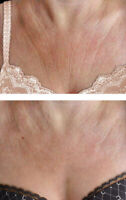Looking for a women who has a wrinkly chest for product demo