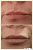 Botox / Comblement des lèvres à 290$ par seringue 1 ml Montréal
