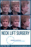 Neck Lift Surgery in Toronto