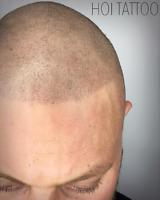 Scalp Micropigmentation/ SMP/ Hairline Tattoo