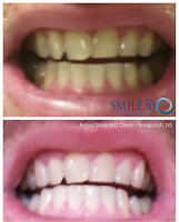 Smile360 Teeth Whitening Treatment