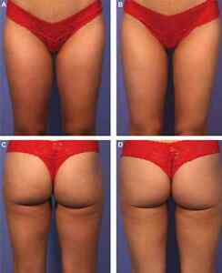 ☆°• 20% Fat Reduction Each Treatment •°☆ Kitchener / Waterloo Kitchener Area image 9