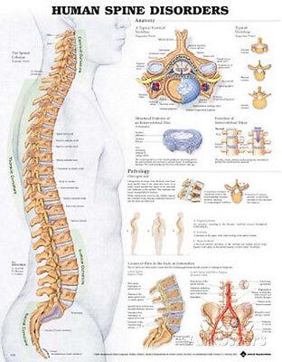 Human Spine Disorders Anatomical Chart Poster Print Poster Print, 20x26
