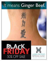 Black Friday Sale Laser Tattoo Removal
