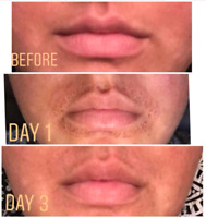 Lip Flip / Lip Lift non-surgical treatment
