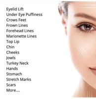 Plasma skin tightening services