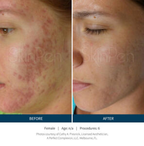 Microneedling Treatment ,Acne Scars ,Wrinkles ,Stretch marks