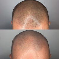 Calgary Scalp Micropigmentation