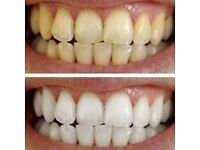 Remove Teeth Stains Caused by Smoking or Coffee within 7 days