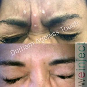 $AY WHAT? - $5 a Unit - $249 FULL SWISS syringe! BOOK Botox now