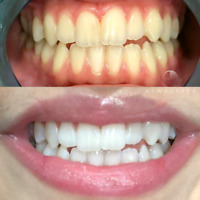 Blanchiment Dentaire | Professionel | Teeth Whitening 130$