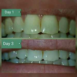 Whitening toothcream