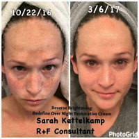 Is your skin discolored or have dark spots ?