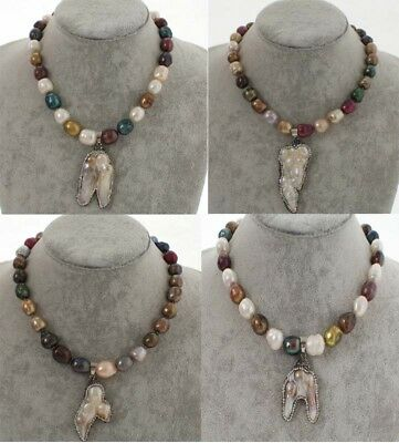 Women Unique Color Round Baroque Keshi  Pearl Bead Statement Collar Necklace