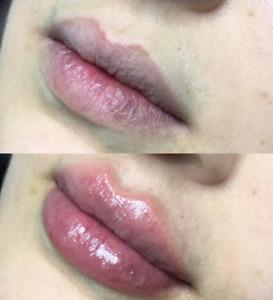 lip fillers | Beauty Treatments | Gumtree Australia Free